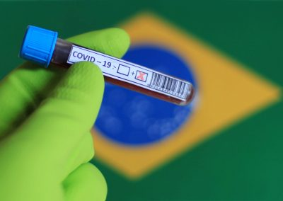 SP supera 1,7 milhão de testes de COVID-19 e amplia 20 vezes média diária de exames